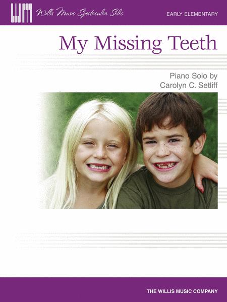 My Missing Teeth